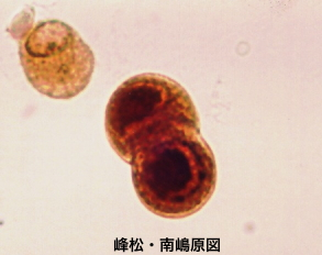 CMV infected cells