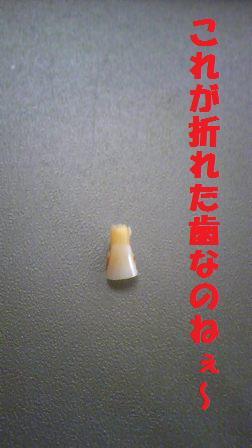 もろくも折れたオイラの歯…