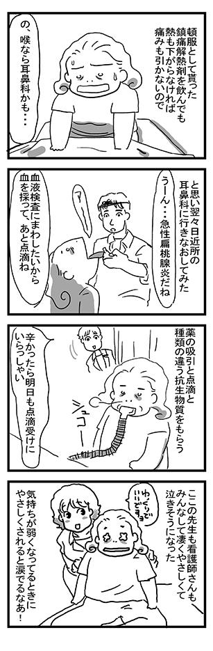 急性扁桃腺炎4