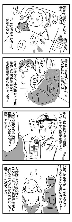 急性扁桃腺炎 7