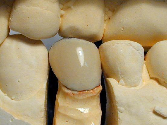 臼歯前装冠前装終了