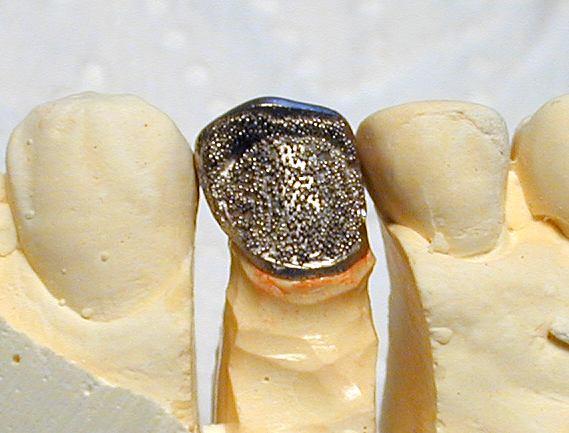 臼歯前装冠メタルフレーム