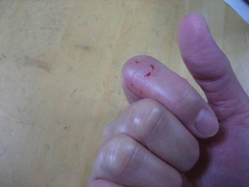 噛まれた傷