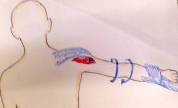 肩を小さく、ゆっくりと回旋させながら、親指で患部を伸展させます。