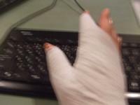 負傷の右手