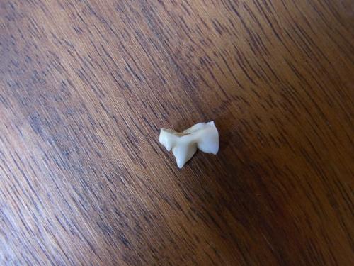 20120328_歯が抜けた01.JPG