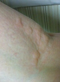 画像 よう な 刺され 麻疹 に 蚊 蕁 た