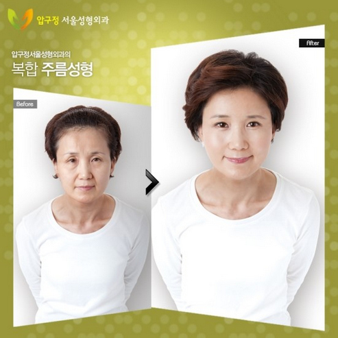 amazing-korean-plastic-surgery-transformations-15.jpg