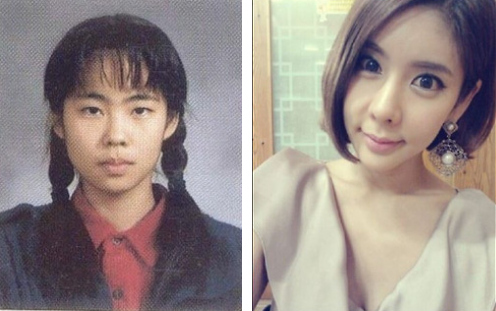 amazing-korean-plastic-surgery-transformations-22.jpg
