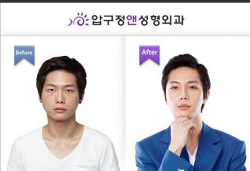 amazing-korean-plastic-surgery-transformations-3.jpg