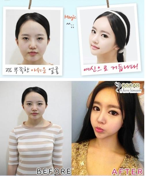 amazing-korean-plastic-surgery-transformations-42.jpg