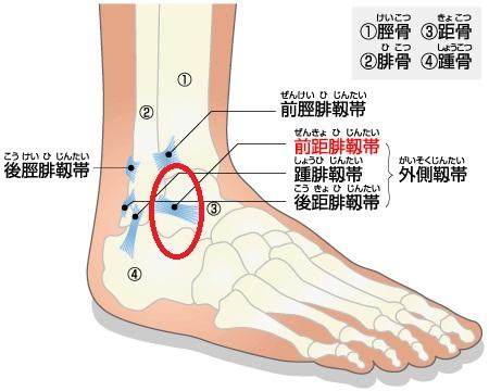 sprain_of_ankle_html.jpg